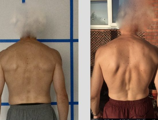 Posture/Body Alignment Therapy